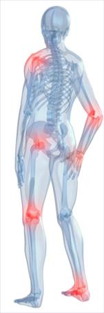 artrózisos vizsgálat)