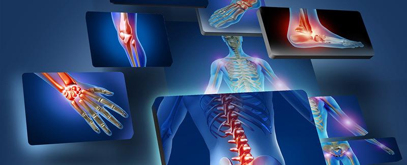 Az ízületek több mint 10 éve fájnak. Fájdalomcsillapítás: ha a csont és az ízület fáj
