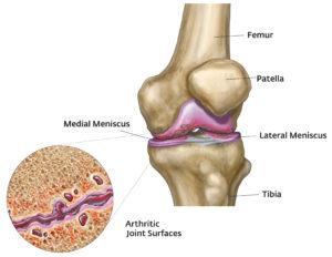 menü egy hétre térd artrózissal