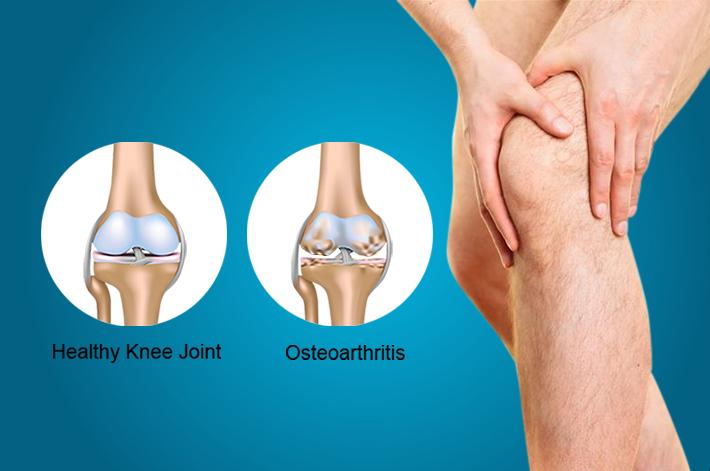 Az artrózis alattomos betegség – lassan alakul ki, Kollagén az artrózis kezelésében
